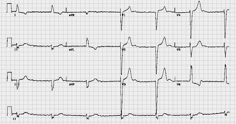 完全性房室传导阻滞伴心房纤颤Atrial fibrillation and complete heart block