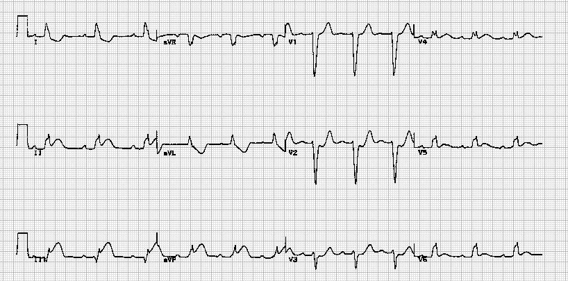 急性心肌梗塞伴左束支传导阻滞Acute myocardial infarction in the presence of left bundle branch block