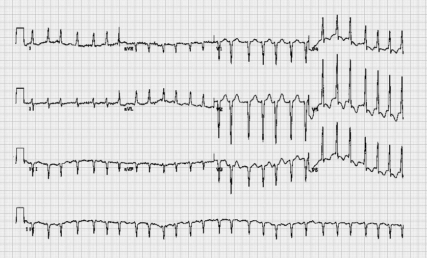 心房纤颤伴快速心室率Atrial fibrillation with rapid ventricular response