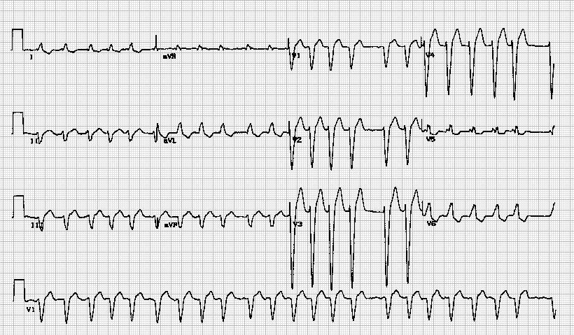 心房纤颤伴左束支阻滞Atrial fibrillation with pre-existing LBBB