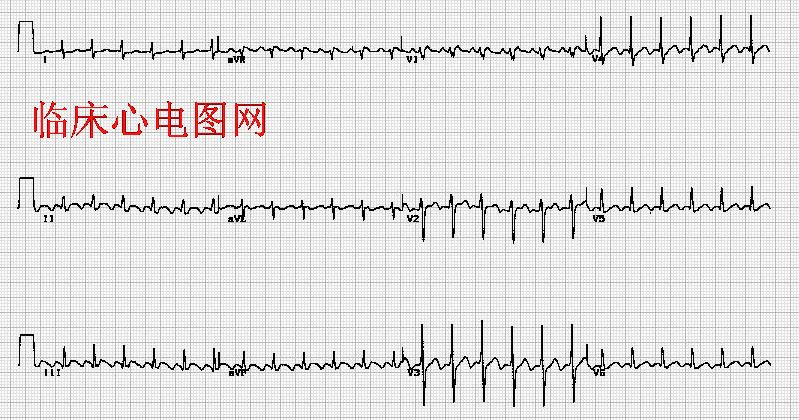心房扑动2:1传导Atrial flutter with 2:1 AV conduction